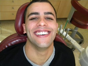 Veneers placed to close his gaps