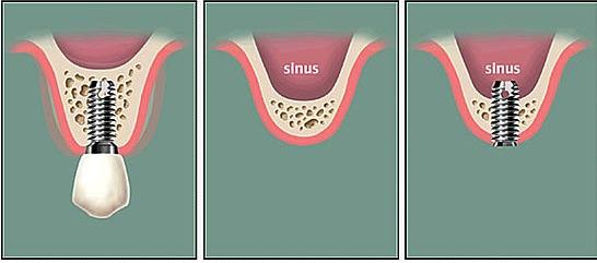 sinus lifts
