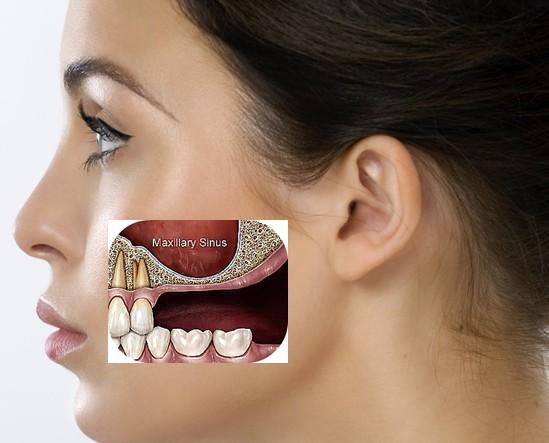Bone graft and sinus lift procedures english speaking for Floor of the maxillary sinus