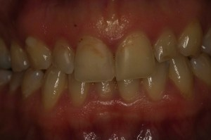 cosmetic dentistry needed stained and chipped teeth with old fillings