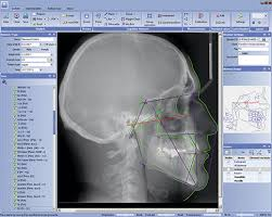 orthodontics cephalometric