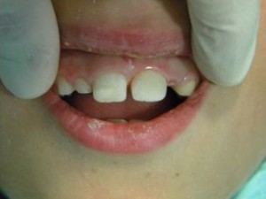 boken tooth repair