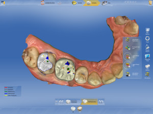 Cerec occlusion computerized dentistry