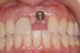 implant esthetics