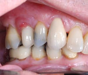 Dental implant problems peri implantitis