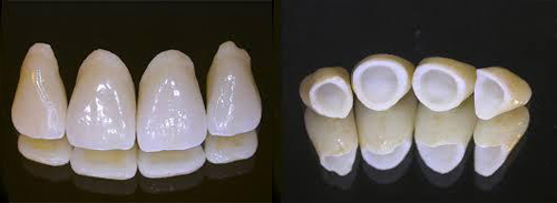 advantages and disadvantages of zirconia crowns