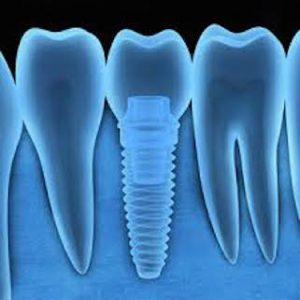 dental ct