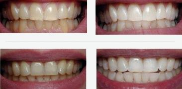 הלבנת שיניים לפני וחרי