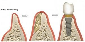 השתלות שיניים והשתלת עצם