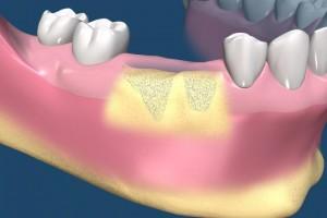 השתלת עצם לקראת השתלות שיניים
