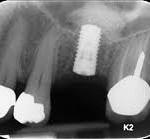השתלות שיניים או שתלים דנטליים