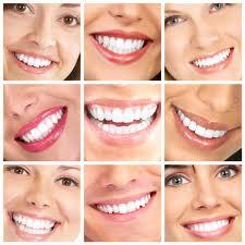 סקר דייטים 2013 מציג שיניים כהכי חשובות