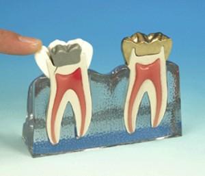 תופעת שן הסדוקה רופא שיניים ירושלים ישראל