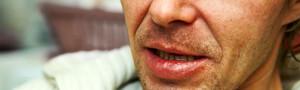 סרטן בפה